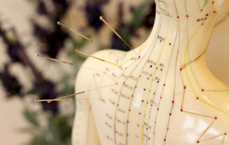 Acupuncture et Méridiens